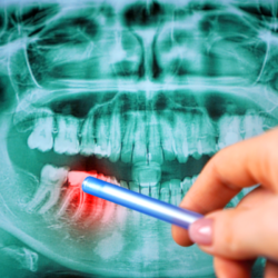 Are there Dentists Who Focus on Working with Patients with Widespread Dental Damage