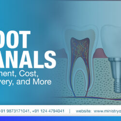 root canal treatment, procedure, recovery, cost, benefits