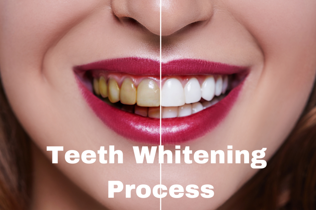 Teeth Whitening Process