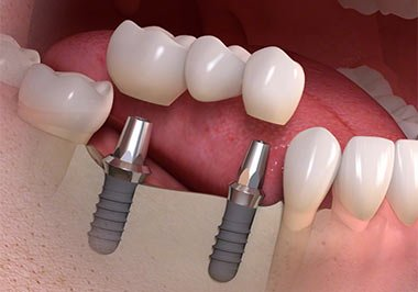 Get Your Dental Implants In Gurgaon