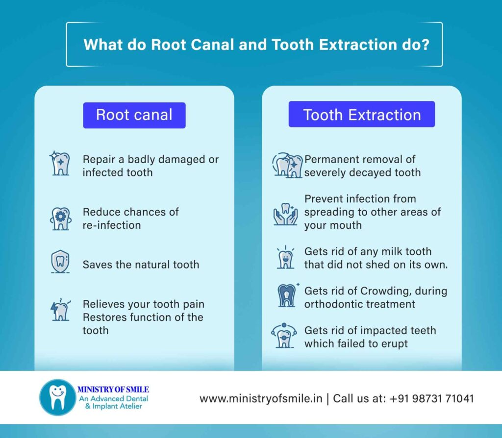 Root Canal Vs. Extraction