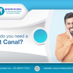 The Need For Root Canal