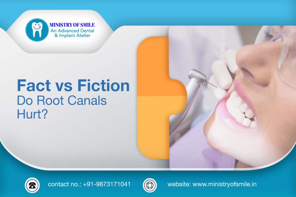 Fact vs Fiction about Root Canals
