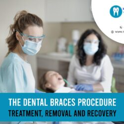 Dental Braces Procedure