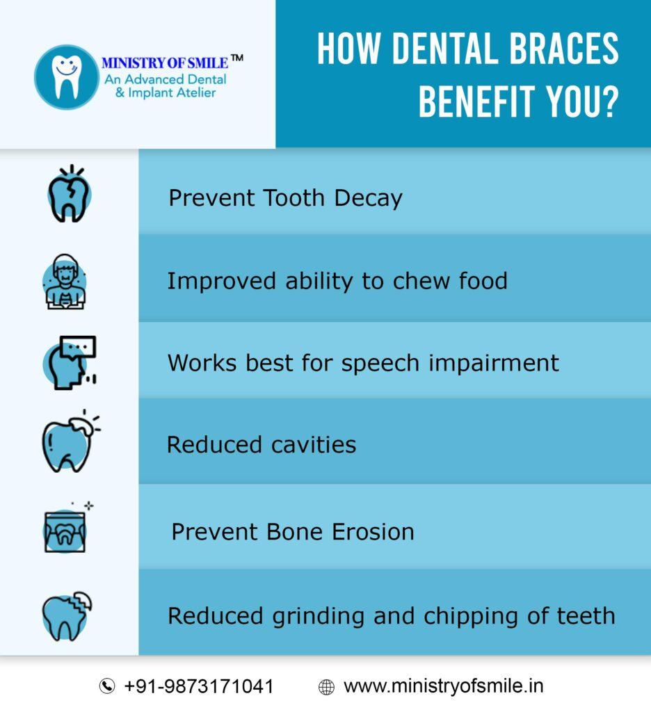 Dental Braces Benefits